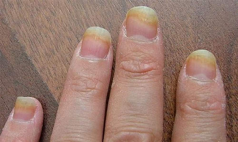 Image result for nail fungal infection